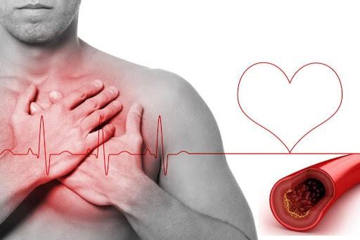 ejercicio físico contra el colesterol alto